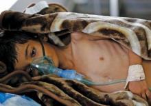 وباء الكوليرا باليمن